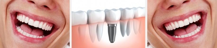 Leistungen - Zahnimplantate